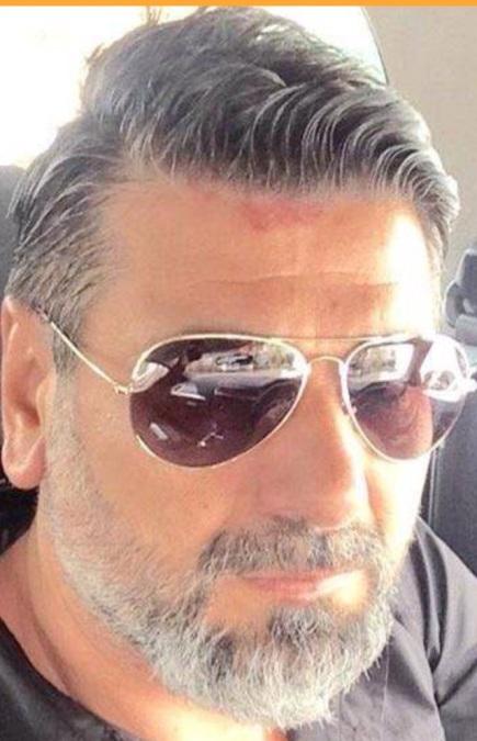 Mehmet Keskin, 44, Antalya, Turkey